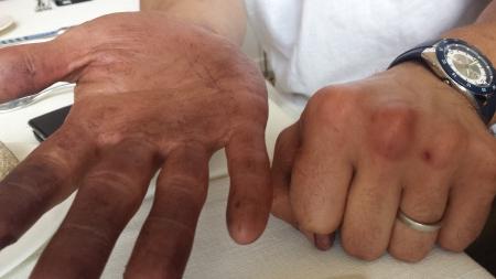 Yannick's hands